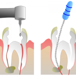 Root canal treatment Kerala