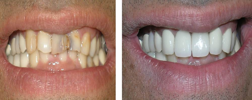 Discolored And Stained Tooth